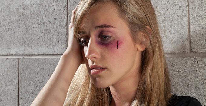 שאלות ותשובות על אלימות במשפחה